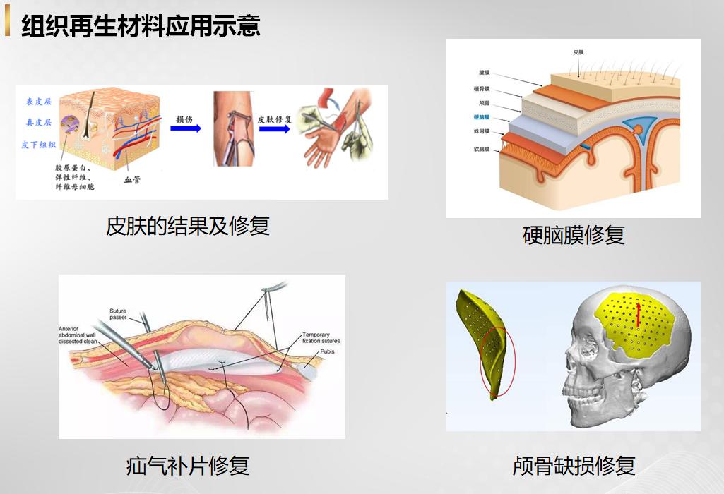 生物医用材料-组织再生材料